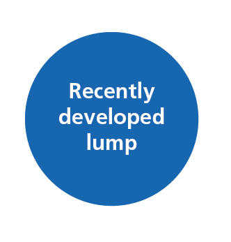 Image says A recently developed lump